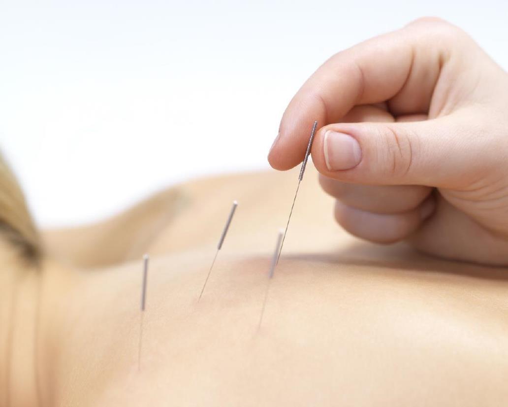 acupuntura_sN